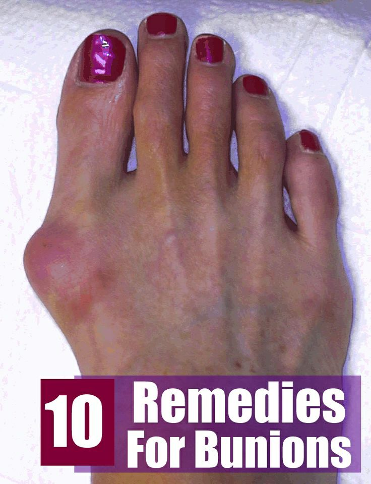 home remedies for tailor's bunions