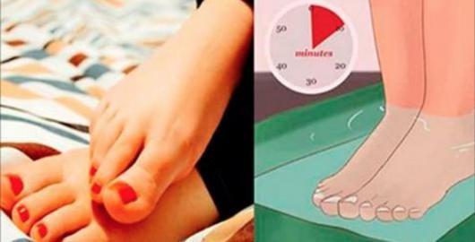 Inchaço nas pernas é um problema bastante comum.E existem várias causas para a existência dele.Pode ser por má circulação, ciclo menstrual, excesso de peso, dieta pouco saudável ou gravidez.