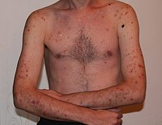 Excoriation Disorder in the DSM-5