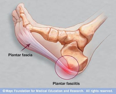 Plantar fasciitis is an inflammation of the fibrous tissue (plantar fascia) along the bottom of your foot that connects your heel bone to your toes. Plantar fasciitis can cause intense heel pain