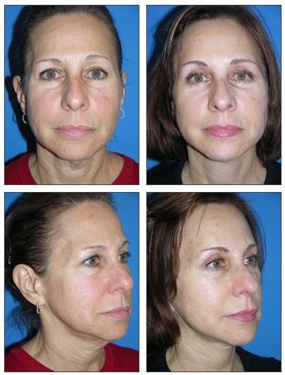 Miami woman, early 60's Facelift, endoscopic brow lift, & quad blepharoplasty. Before and 2 months after surgery.