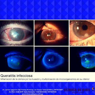 Clínica de Ojos Oftalmic Láser: QUERATITIS INFECCIOSA