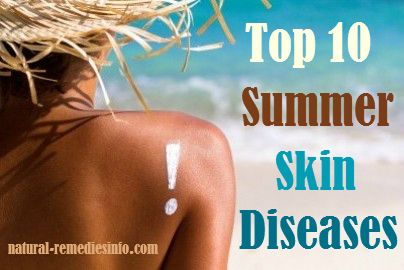 Top 10 Summer Skin Diseases #summer #remedies