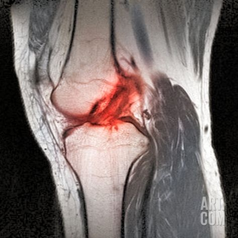 Anterior Cruciate Ligament Tear, CT Scan Photographic Print by Du Cane Medical at Art.com