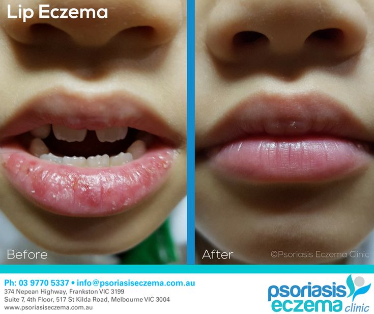 Lip Eczema Before and After Results! At the Psoriasis Eczema Clinic, we provide natural solutions based on medical research to treat the symptoms and address the underlying triggers of skin conditions. Contact us today to find out how we can help you! #integrative #dermatology #natural #treatment #solutions