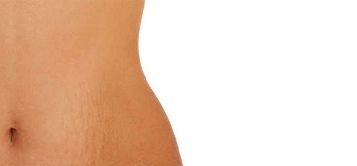 Want to get rid of those stretch marks? These remedies will surely help! – EyogGuroo