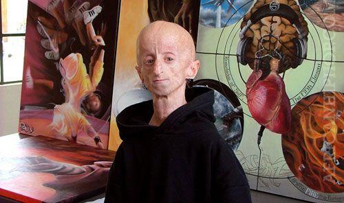 Leon Botha 1985-2011. He was the world's oldest survivor of Progeria.