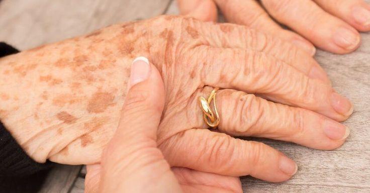 Verwijder heel eenvoudig de bruine vlekken op je huid! Bruine vlekken, ook wel bekend als ouderdomsvlekken, zijn bij veel mense...