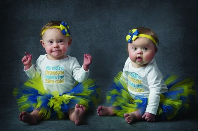 Adorable Down's Syndrome babies pose with midwives to raise awareness and funds for a very important charity