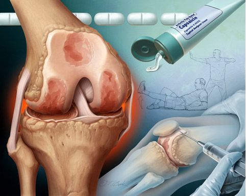 the dangers of arthritis essay Expert blog dangers after childbirth  rheumatoid arthritis can put you at increased risk of cardiovascular disease it also increases your risk of stroke.