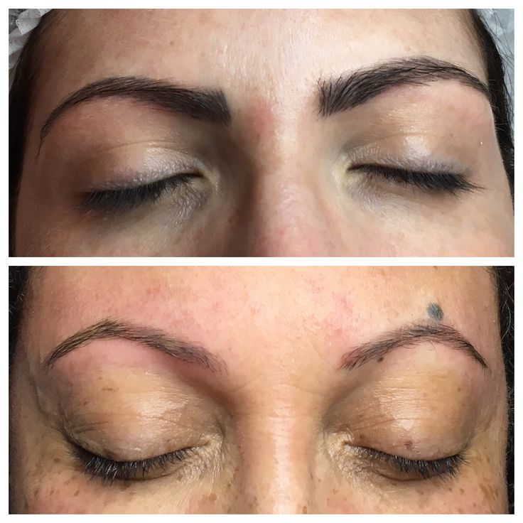 Before I explain this photo I just want to say that each of these clients had very different brows to start with and choose different colours and shapes...  Both these treatments are healed after one session  The difference is that the above photo is the needle method and the photo below is the Microblading method  I want to show you just how natural both can be depending on your face shape, skin tone etc but also just how light Microblading can be