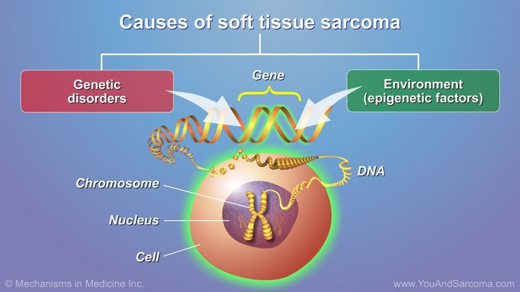 Causes of Soft Tissue Sarcoma