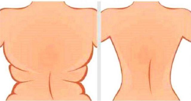Derrite la grasa de la barriga, espalda y elimina la flacidez con esta poderosa receta | Salud con Remedios