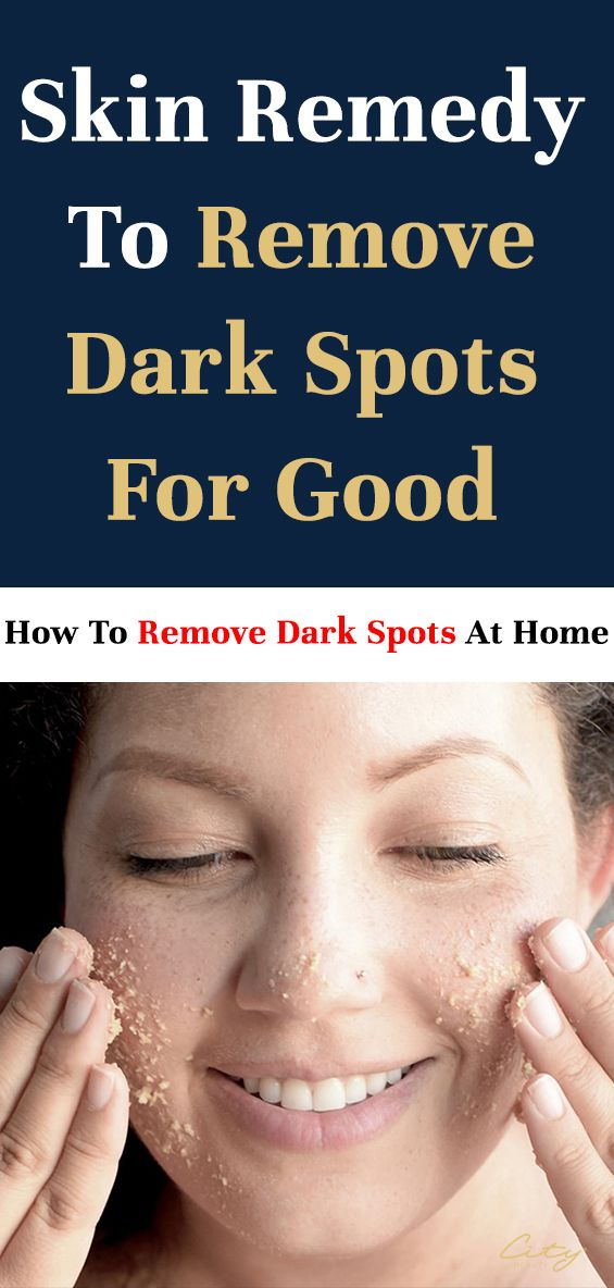 How To Lighten Dark Spots