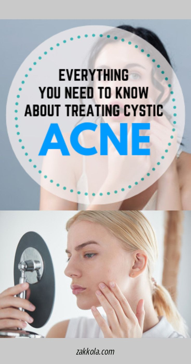 12 Best Home Remedies for Acne & Pimple Treatment …