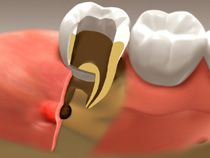 House Dental Centre offers root canal therapy to the patients in Red Deer. Book an Appointment!
