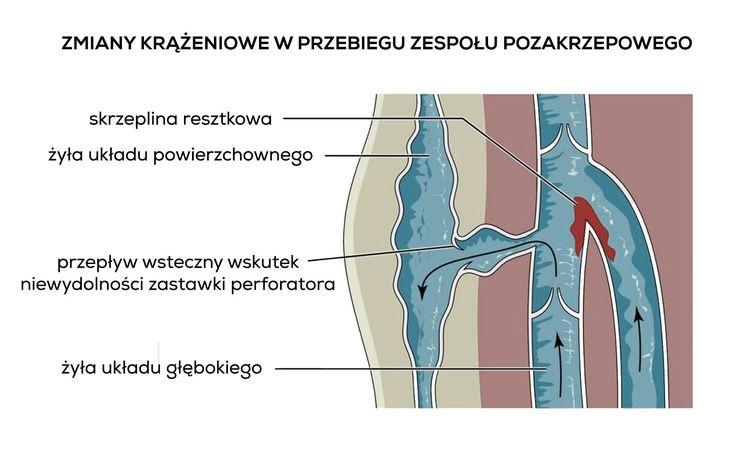 Zespół pozakrzepowy to dokuczliwa choroba, będąca konsekwencją przebytej zakrzepicy żylnej w układzie głębokim  - zespół pozakrzepowy to konsekwencja przebytej zakrzepicy żylnej układu głębokiego
