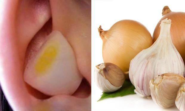 Por qué mucha gente pone un trozo de ajo y cebolla en su oreja