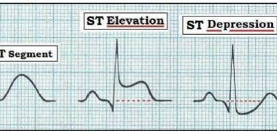 ST depression may represent Myocardial Ischaemia – the damage is reversible (with the right treatment)  ST elevation may represent Myocardial Infarction – damage is irreversible