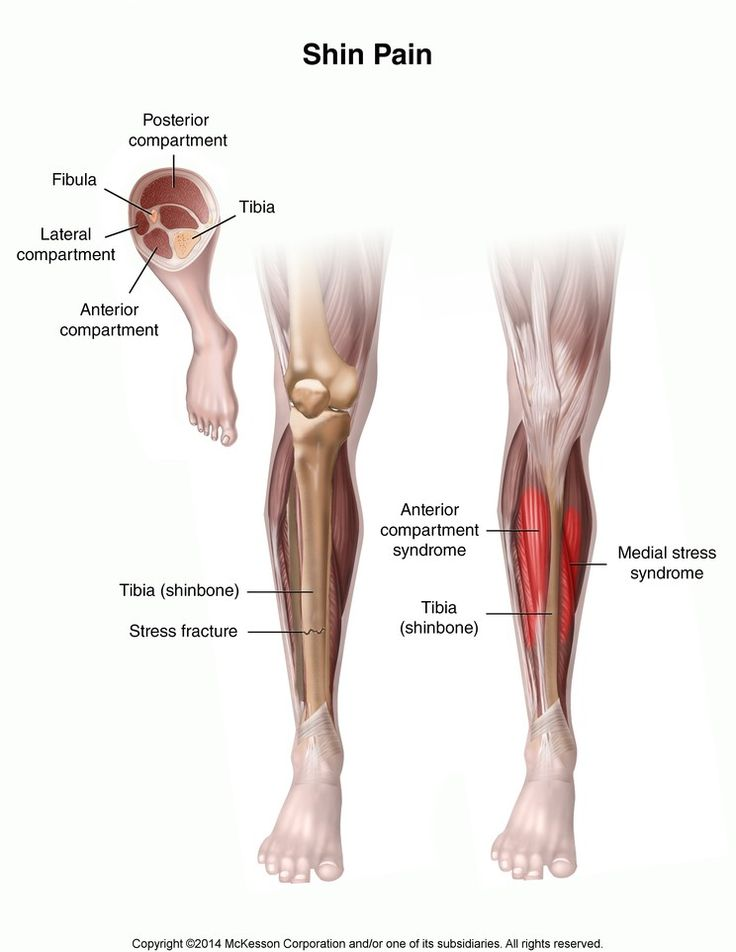 shin splints refers to along the shin bone and is