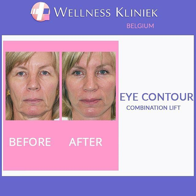 Plastic surgery before and after - Wellness_Kliniek Belgium Eye contour combination lift: Browse  to the #wellnesskliniek in #belgium for lots of info, before and after photos, best price to: http://www.wellnesskliniek.com/en/plastic-surgery/eyes. Get all the required details on #upper_eyelids_correction, #lower_eyelids_correction, #bags_under_the_eyes, #eyelids_surgery, #cost, #aftercare.