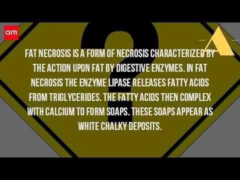 What Does Fat Necrosis Mean? - ✅WATCH VIDEO👉 http://alternativecancer.solutions/what-does-fat-necrosis-mean/     El daño al tejido graso puede ocurrir después de una biopsia con aguja, cirugía de mama (incluida la reconstrucción) o radioterapia 19 de mayo 2017 necrosis significa muerte celular, lo que sucede cuando las células no obtienen suficiente oxígeno. [2] definición de necrosis grasa en el...