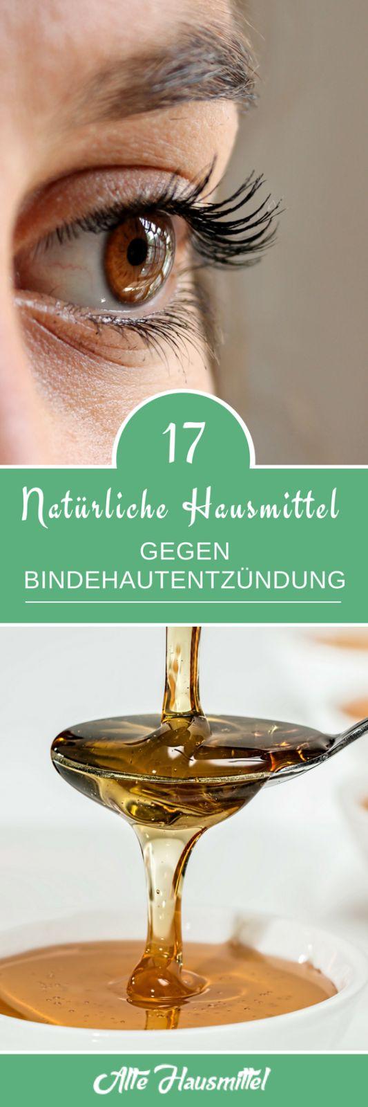 Bindehautentzündung natürlich bekämpfen - In diesem Artikel stellen wir Ihnen 17 natürliche und effektive Hausmittel gegen Bindehautentzündung vor.