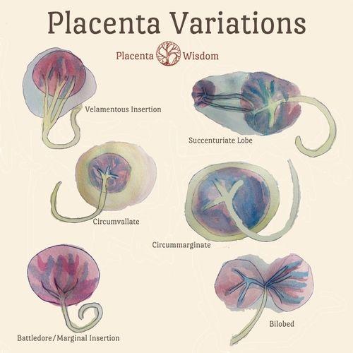 Placenta Variations — Placenta Wisdom