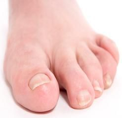 Swollen Toe Causes