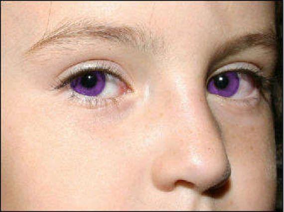 Natural Violet Eyes Mutation