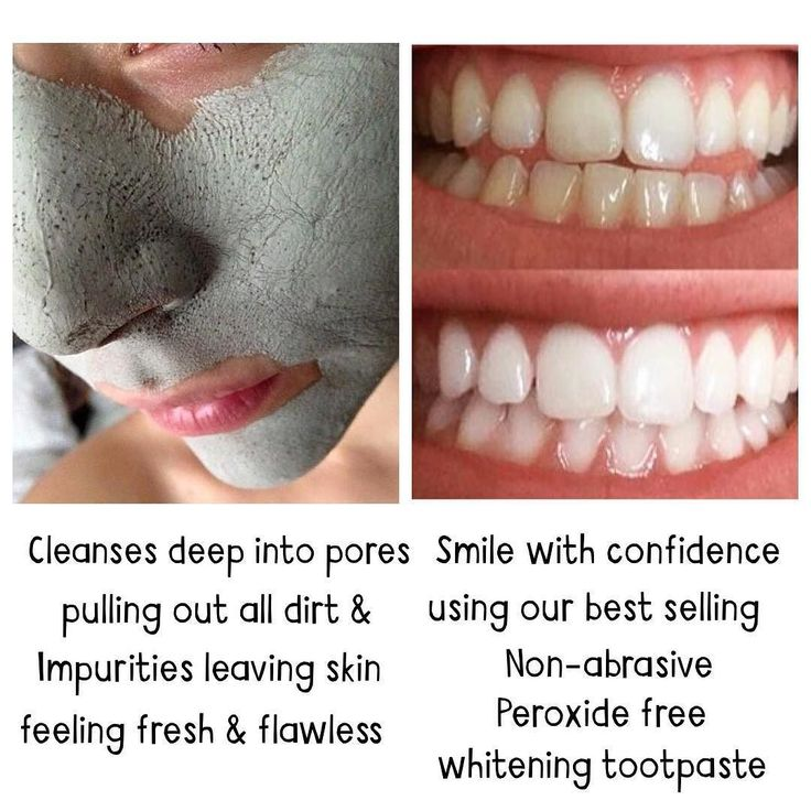 Because it's the W E E K E N D & I am in a ridiculously good mood when you buy a Marine Mud Mask you'll receive a FREE whitening toothpaste; so now you can have flawless skin AND pearly whites Message me to order yours #freebie #whiteningtoothpaste #mudmask #marinemudmask #teethwhitening #freegift by xthisgirldoesitall Our Teeth Whitening Page: http://www.lagunavistadental.com/services/cosmetic-dentistry/teeth-whitening/ Other Cosmetic Dentistry services we offer…