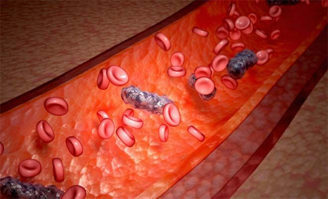 What is sepsis: causes, symptoms and how to treat it naturally?
