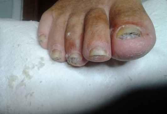 Лечение грибковых заболеваний ногтей ног луком