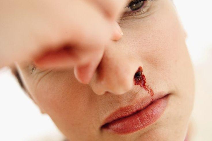 Cómo tratar el sangrado nasal por anticoagulantes | Muy Fitness