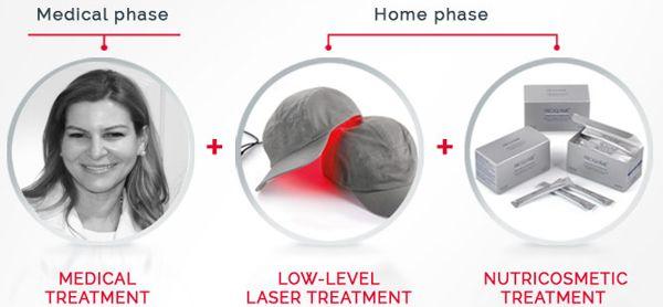 Low-Level Laser Hair Therapy http://www.dravbenitez.com/#!hair-laser/ckah