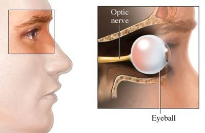 Hemianopsia DefinitionCausesRisk_FactorsSymptomsDiagnosisTreatment PreventionRevision Definition Hemianopsia is the loss of half of the visual field. A person with hemianopsia only sees a por…