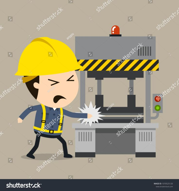 Accident during press operation vector illustration