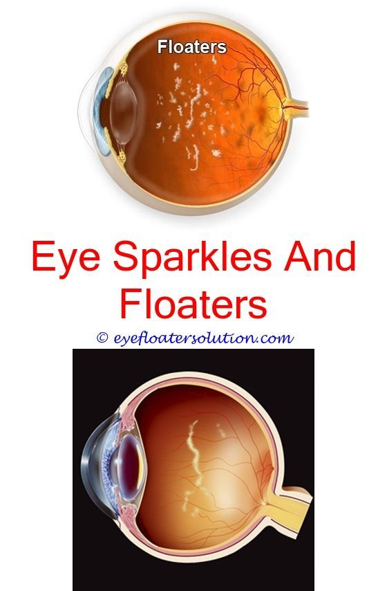 floaters black spot in eye - constant headaches and eye