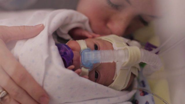 As we near the end of Prematurity Awareness Month, I had to share this moving video of Baby Ward's first year of life... https://vimeo.com/78393869