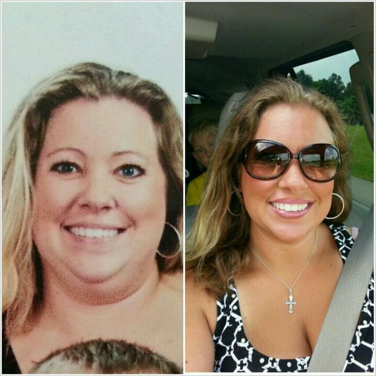 What inspired you to begin your transformation?   I wanted my face back…it was so hidden by the fat. I wanted to be able to laugh without fear of how it made my double chin look. I wanted to be able to smile.  http://allnaturaltransformations.com/transformations/female-transformations/female-weight-loss-transformation-with-brandee-on-trying-to-find-her-face?