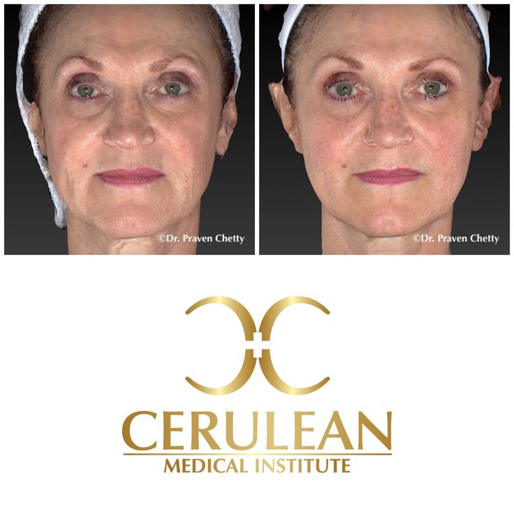 Juvederm Voluma for cheek enhancement by Dr. Praven Chetty in Kelowna, BC. Natural looking results with Juvederm dermal fillers for natural looking results. #Juvederm #Voluma #Cheek #DermalFillers #Cosmetic #Dermatology #Nonsurgical #Natural #Facelift #DrPravenChetty #CeruleanMedicalInstitute #Kelowna