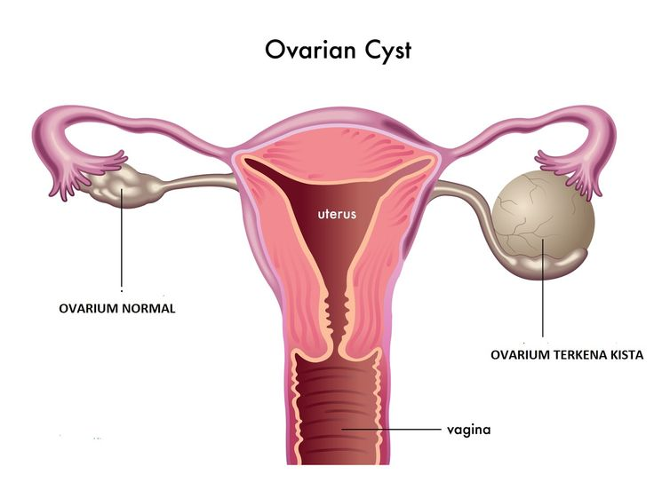 Bahaya Benjolan Di Mulut Rahim Dan Cara Mengobatinya –  Apakah di mulut rahim anda terdapat benjolan? Waspadalah jika di mulut rahim terdapat benjolan mau itu kecil atau besar harus segera periksakan diri Anda ke dokter jangan di biarkan begitu saja berbahaya.