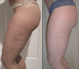 Lipo Ex Treatment at thighs