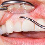 5 Good Oral Hygiene Tips For Healthier Teeth And Gums #oralgumremedies #oralhygienetips