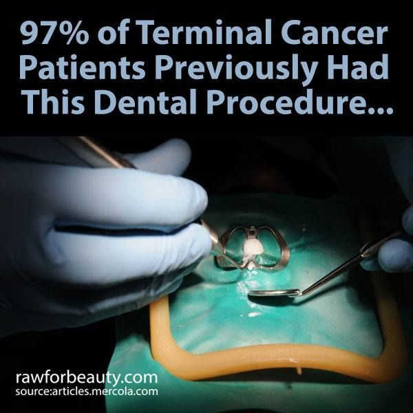 97% of Terminal Cancer Patients Previously Had This Dental Procedure