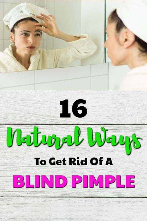 16 #Natural Way To Get Rid Of A Blind #pimple