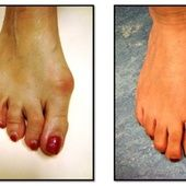 """Élet """"bütyök"""" nélkül: egyedülálló módszer, mely 2 hónap alatt szabadítja meg Önt a lábbütyöktől!"""