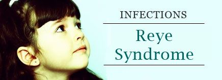 Reye Syndrome - Why it is advisable to avoid giving aspirin to children.