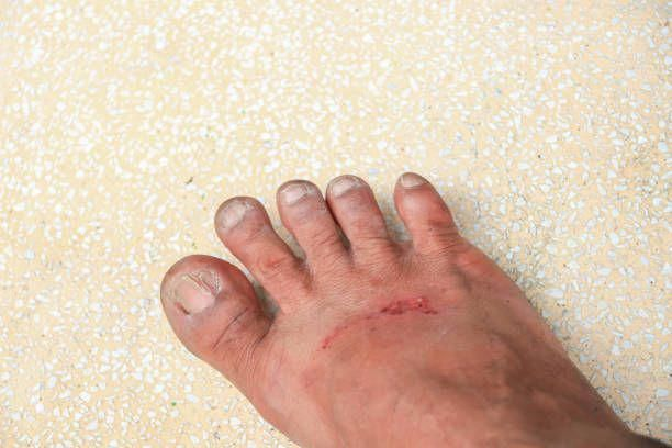 How To Know When A Fungal Infection Is Gone-Treatment Of Toenail ...