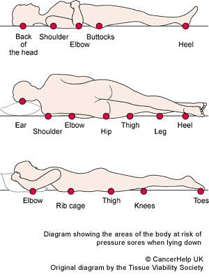 pressure areas nursing  Google Search  Nursing Stuff